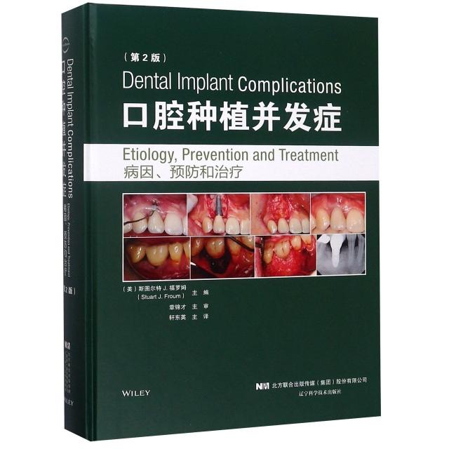 口腔種植並發癥(病因預防和治療第2版)(精)