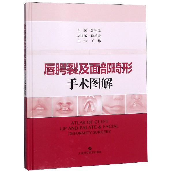 唇齶裂及面部畸形手術圖解(精)