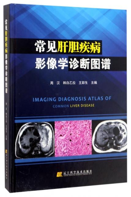 常見肝膽疾病影像學診斷圖譜(精)